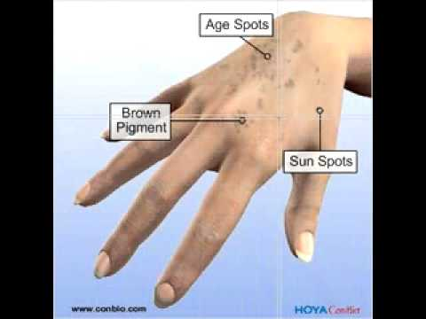 Skin Cancer Symptoms - Healthline