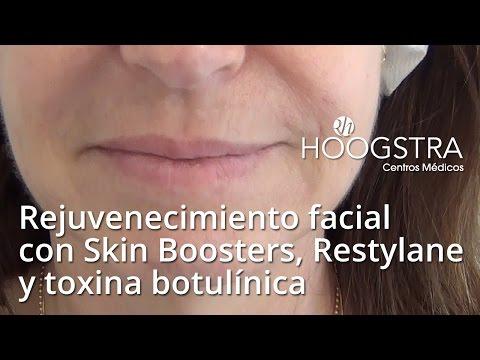 Rejuvenecimiento facial con Skin Boosters, Restylane y toxina botulínica (15162)