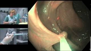 Résection des « petits » polypes : une petite anse froide qui peut devenir chaude
