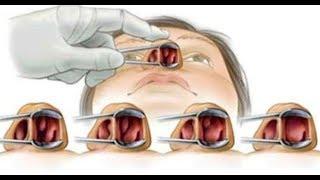 Débarrassez-vous naturellement des allergies et des polypes nasaux