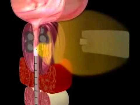 Prostiva RF Therapy Procedure Animation