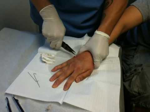 Tae Getting Metal Pins in Hand removed - YouTube