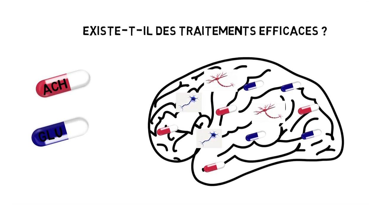 Download Maladie d'Alzheimer : existe-t-il des médicaments efficaces ?