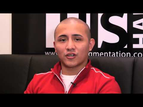 scalp-micropigmentation---edson-from-new-york-hair-loss-story-(complete)