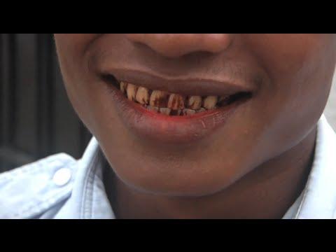 Myanmar Bans Betel Nut to Reduce Risk of Oral Cancer