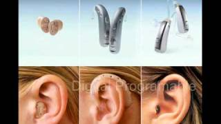 HEARING LOSS, HEARING AIDS, COCHLEAR IMPLANTS, SHRAVYA SPEECH AND HEARING CENTER