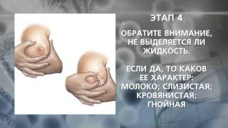 видео Причины изменения лимфоузлов при мастопатии