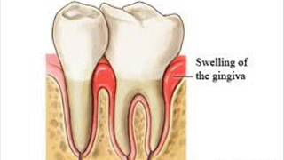 DENTAL CARE 8 Wisdom tooth INFECTION CONTROL HEALTH EDUCATION ICSP 94 URDU / HINDI
