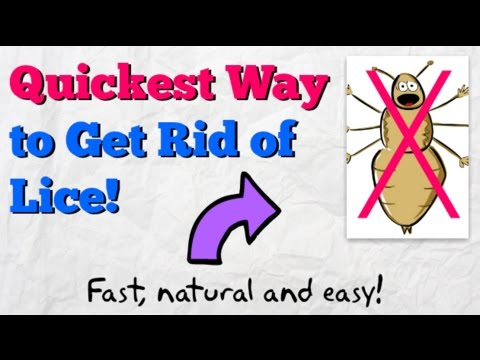How to Get Rid of Lice FAST! | Home Remedy to Kill Head Lice Naturally - YouTube