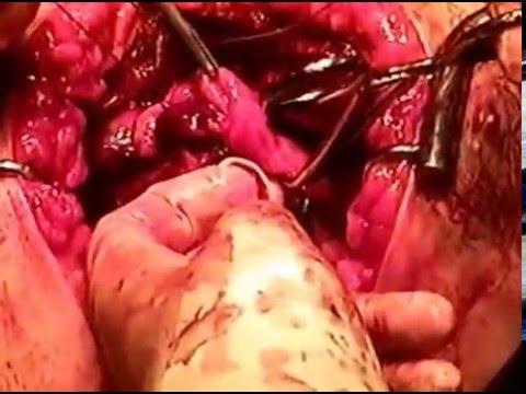 Operación de Corazón