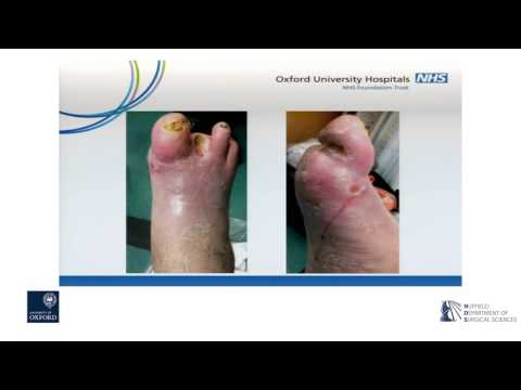 Oxford University surgical lectures: Improving diabetic foot disease