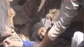 هذا مايحصل في اليمن جراءقصف طيران التحالف السعودي