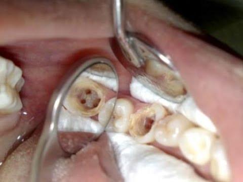Inilah Cara Ampuh Mengobati Sakit Gigi Berlubang Cepat Secara Alami
