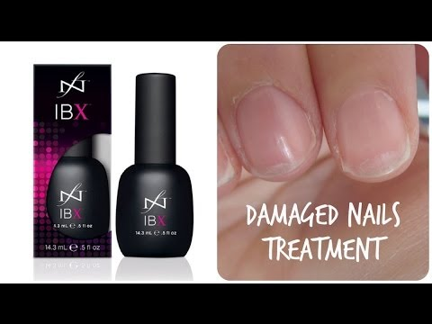 Review of New Treatment for Damaged Nails - YouTube