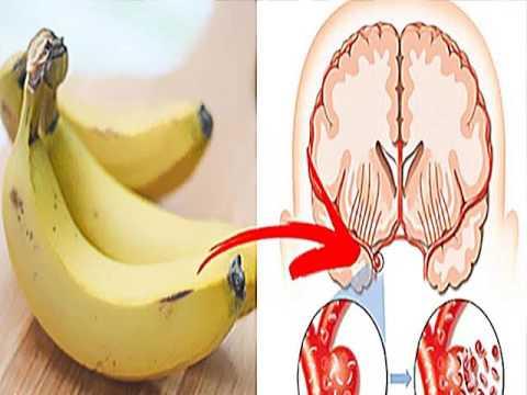 Kết quả hình ảnh cho Bananas are great for your brain.
