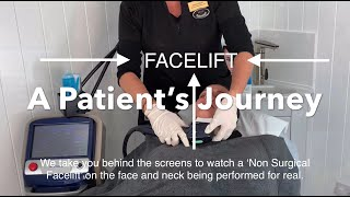 Non Surgical Facelift F๐r Neck - My Experience Having A Non Surgical Facelift