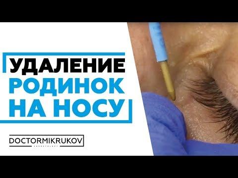 Удаление родинок на носу в Ростове #удалениеродинок #удалениепапиллом