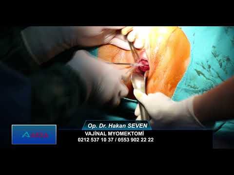 Vajinal Myomektomi / Op. Dr. Hakan SEVEN