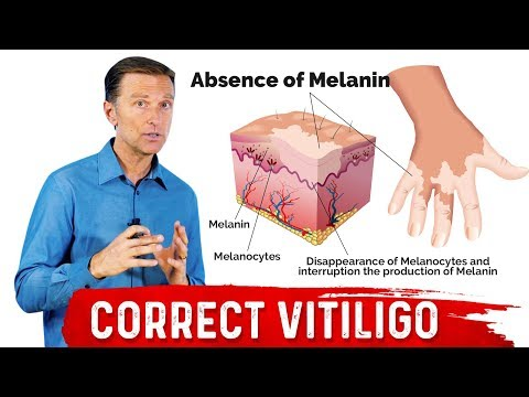 Fix Vitiligo With Copper