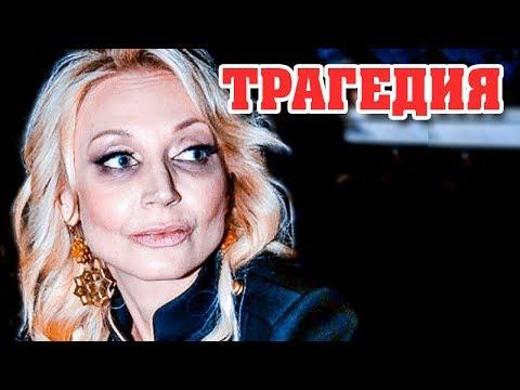 Страшную болезнь Орбакайте уже нельзя скрыть… Певица призналась Россиянам