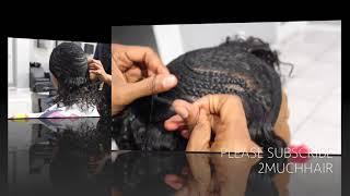 PART 2 Seborrheic Dermatitis Psoriasis DeScaling Scalp New Weave Installation