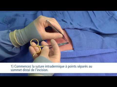 Vidéo de formation sur les techniques de points de sutures