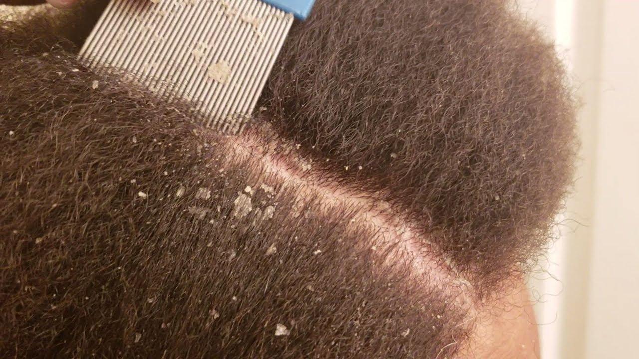 A fejbőr pikkelysömörének kezelésében, Cynovit krém pikkelysömörhöz