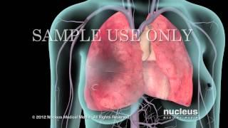 Definición médica sinusal trombosis
