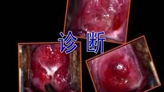 卫生部医学视听教材—妇产科—FC012 宫颈炎
