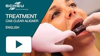 Katharinas successful CA® CLEAR ALIGNER treatment