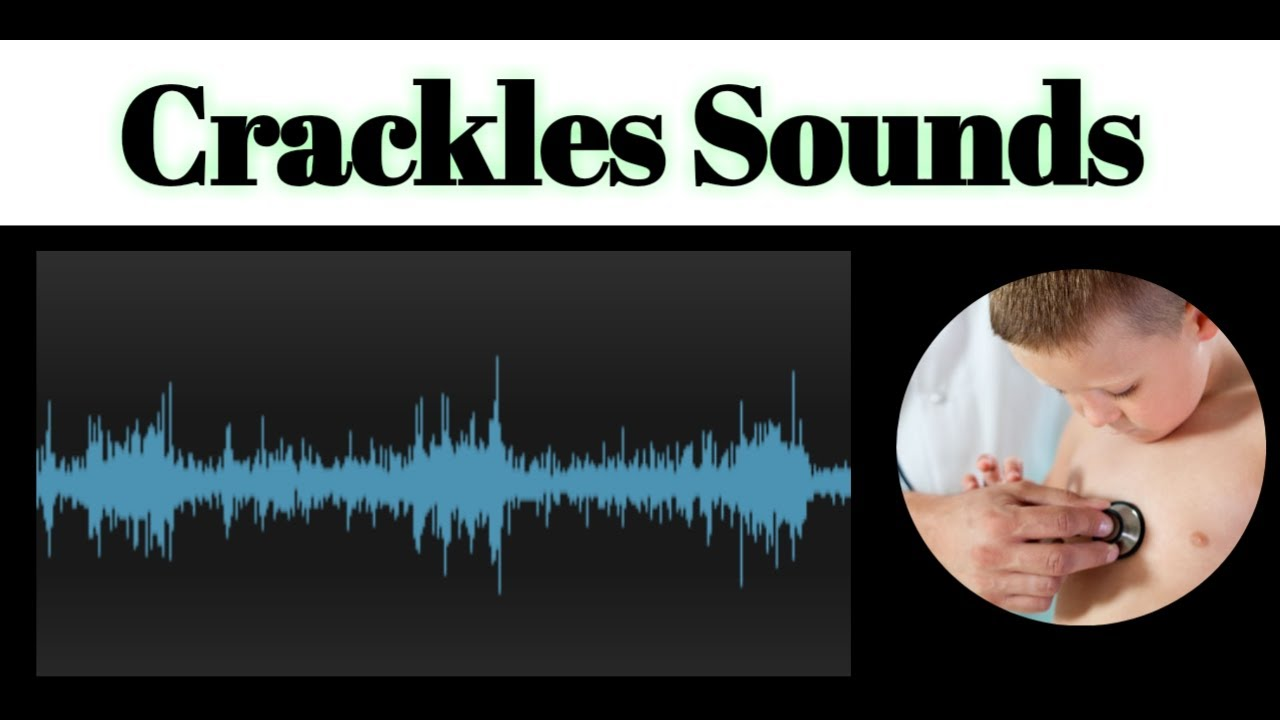 Crackles Sounds In Lungs - YouTube