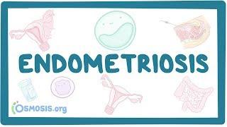 Endometriosis - Causes, Symptoms, Diagnosis, Treatment, Pathology