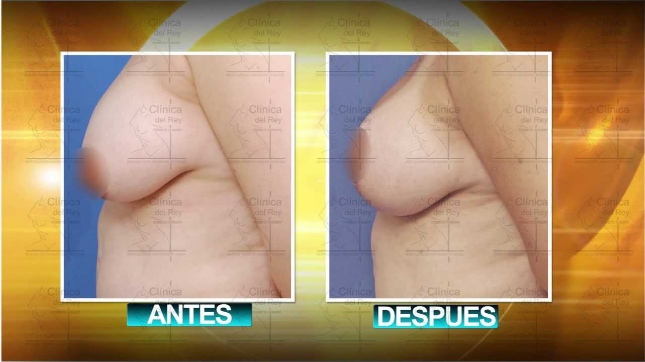 Mastopexia con fotos de implantes mamarios