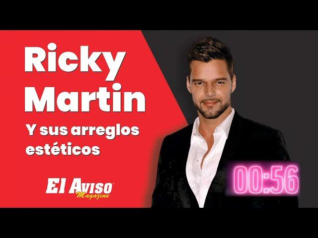 Joan Sebastian ligado a narcos, Ricky Martin y sus cirugías, Argelia Atilano una Gran Dreamer, P...
