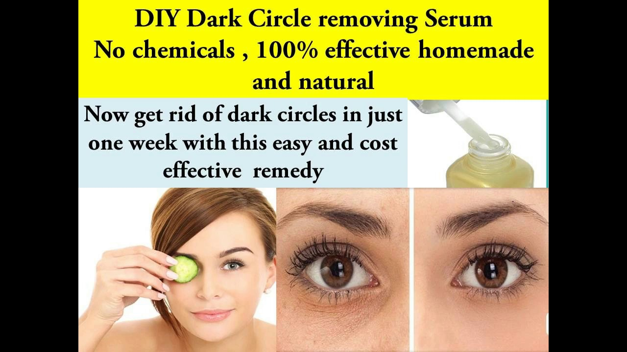 Dark circles under eyes || How to get rid of dark circles ...