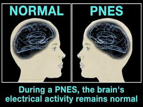 PNES's: Psychogenic Non-Epileptic Seizures (Health Guru)