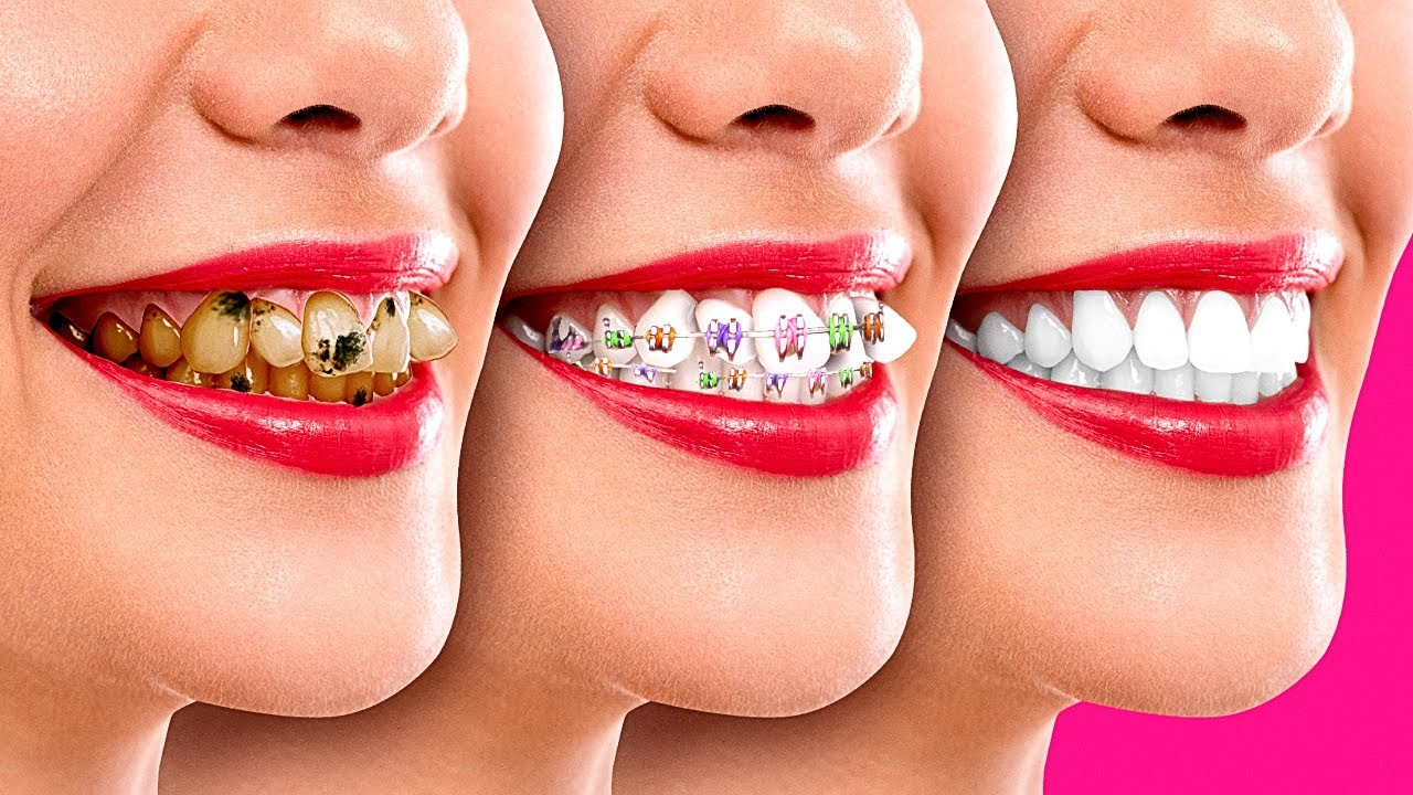 Stuck in Jail of BRACES - CRAZY Girly Problems | Awkward Relatable Situations by La La Life School