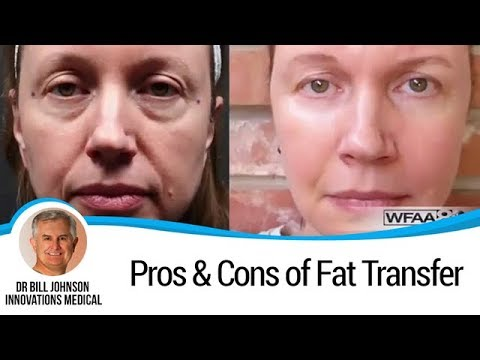Fat Transfer To The Face (Pros and Cons)