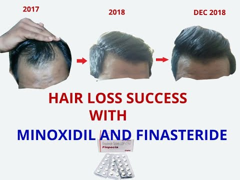 hairloss-success-with-finasteride-and-minoxidil