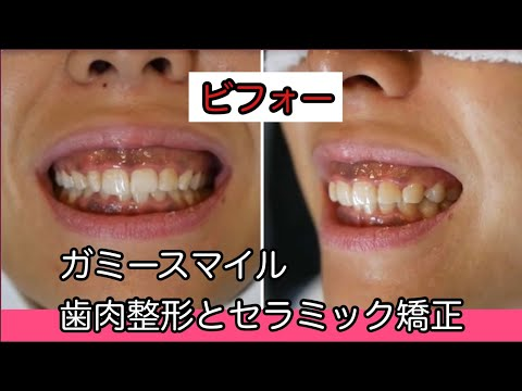 歯茎の見えすぎ、歯が小さい、歯が黄色い、歯茎が黒い事が悩みのアクティブでスタイルのいい女性