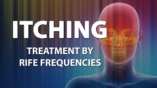 Itching (Skin) - RIFE Frequencies Treatment - Energy & Quantum Medicine with Bioresonance