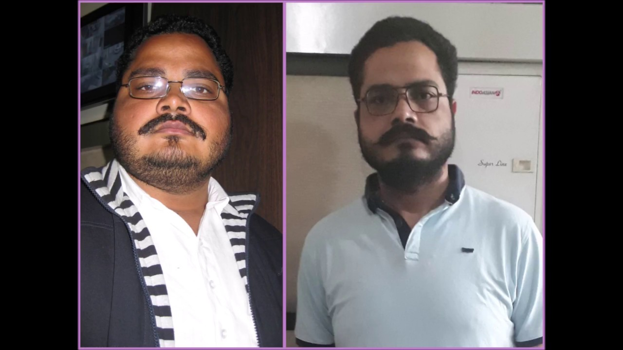 Best Bariatric Surgery Happy Patient After 5 Years Of Mini Gastric