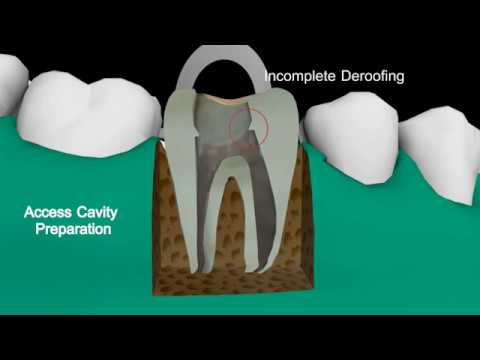 Department of Dentistry Reason of Nectrotic Debris