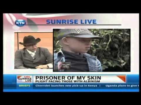 Sunrise Live Interview - Prisoner of my skin
