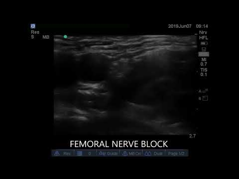 Ultrasound Guided Femoral Nerve Block 1