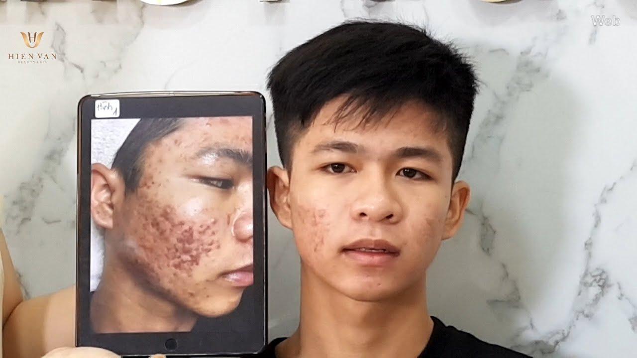 Skin improvement after 5 treatments at hien van spa 367 Duy Tan