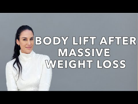 Body Lift After Massive Weight Loss: First Operation