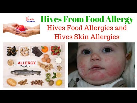Hives From Food Allergy – Hives Food Allergies and Hives Skin Allergies