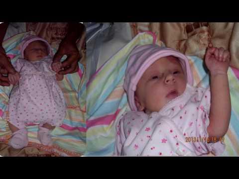 NADIA's Progress with Erbs Palsy - birth to 4years old