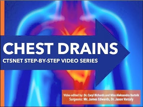 CTSNet Step-by-Step Series: Chest Drains | CTSNet